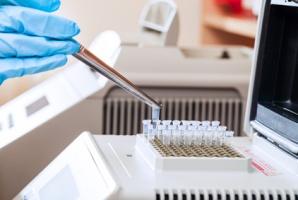 testDNA wprowadza do swojej oferty badania ojcostwa na podstawie analizy 24 markerów