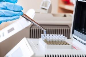 Dieta DNA - jak wykonać badanie