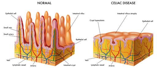 celiac disease 2