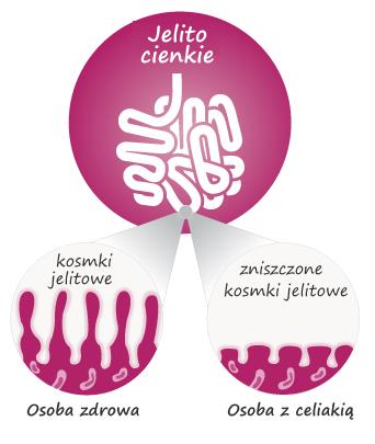 celiakia Kościerzyna, testy na celiakię Kościerzyna, badania na celiakię Kościerzyna, badanie DNA na celiakię Kościerzyna, badanie dna celiakia Kościerzyna, badanie celiakia Kościerzyna, badania celiakia Kościerzyna, celiakia badanie Kościerzyna, testy DNA na celiakię Kościerzyna, testy genetyczne celiakia Kościerzyna, test celiakia Kościerzyna, celiakia test Kościerzyna, test dna na celiakię Kościerzyna