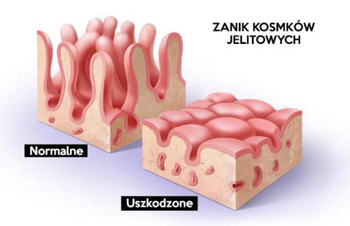 nietolerancja glutenu objawy skórne, celiakia objawy skórne