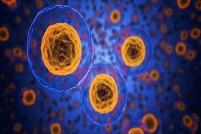 Co oznacza wysoka ferrytyna w organizmie, Czy wysoka ferrytyna jest niebezpieczna, Co powinno się wiedzieć o wysokiej ferrytynie, Czy wysoka ferrytyna oznacza hemochromatozę